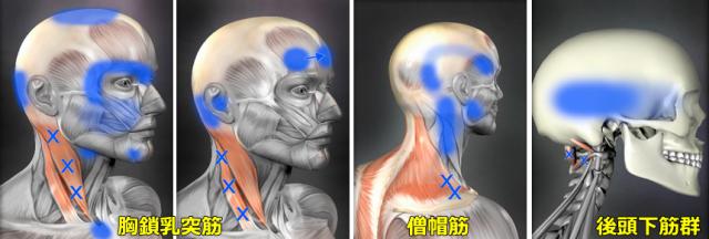 頭痛のトリガーポイント図