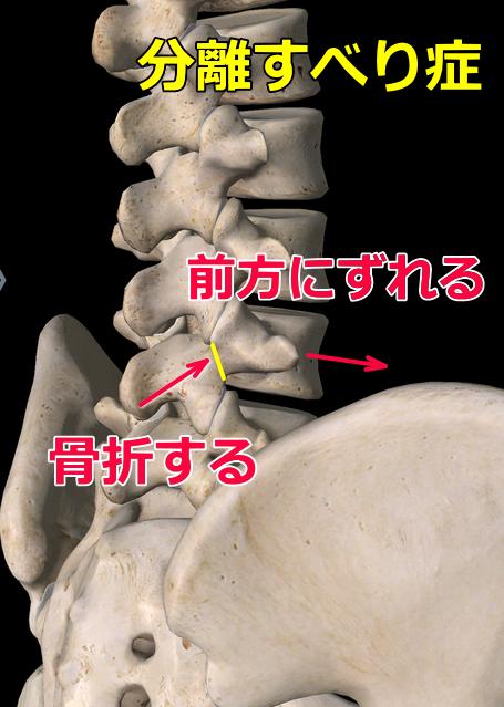 腰椎分離すべり症の画像