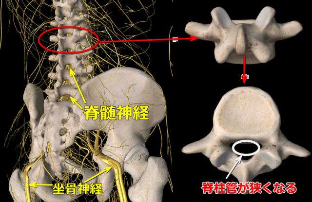 腰椎狭窄症図