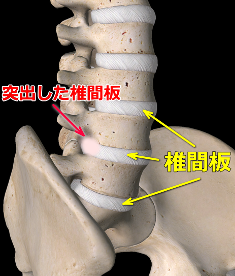 椎間板ヘルニア図