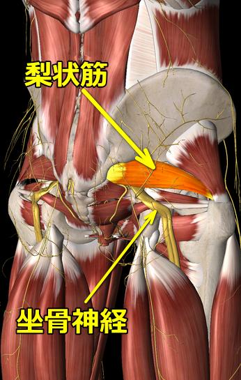 梨状筋症候群の図